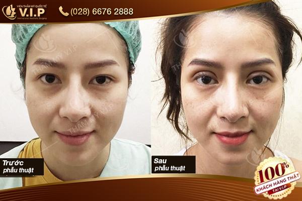 hình ảnh trước và sau phẫu thuật mắt to