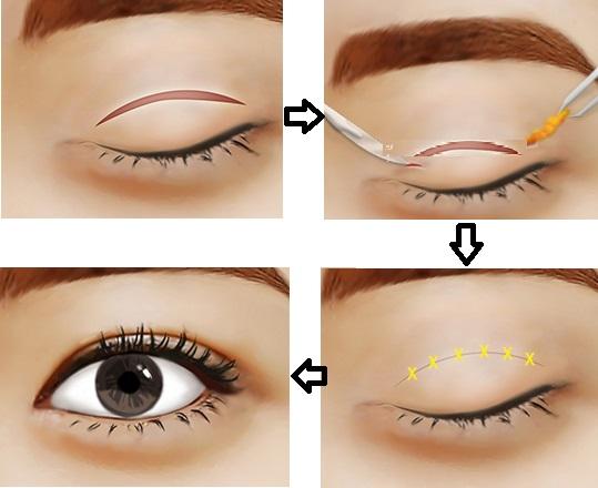 Quy trình cắt mí mắt tại VIP