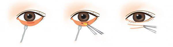 quy trình lấy bọng mỡ mí mắt dưới