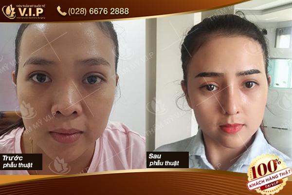 Hình ảnh khách hàng phẫu thuật mở rộng gốc mắt