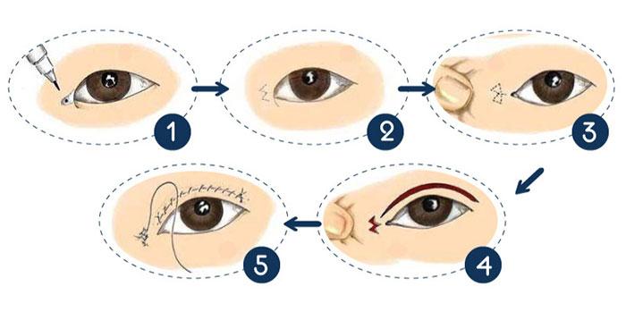quy trình phẫu thuật mở rộng góc mắt