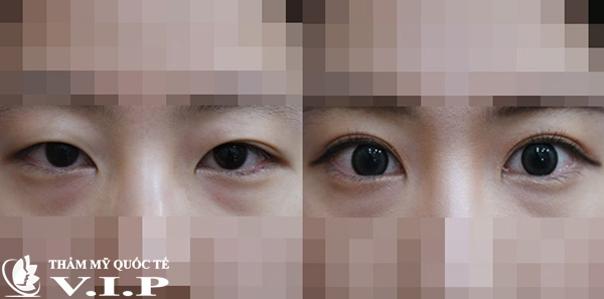 khác hàng phẫu thuật mắt to tại VIP