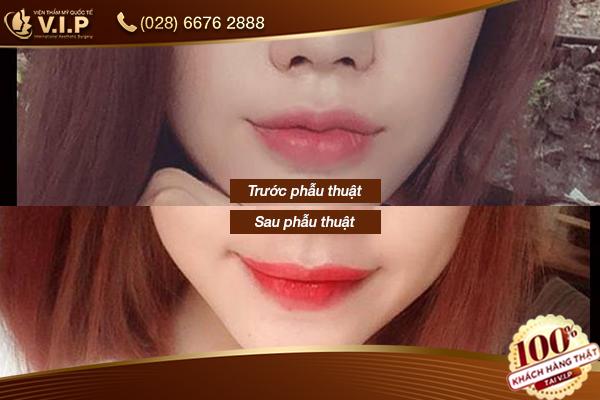 khách hàng chỉnh hình môi tại V.I.P
