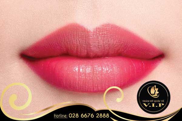Phẫu thuật môi