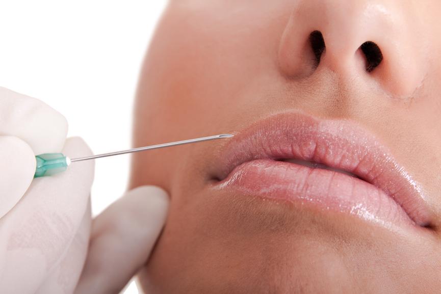 phẫu thuật thẩm mỹ môi có đau không