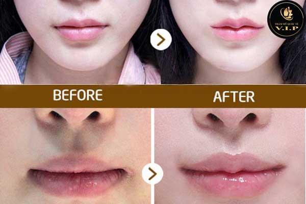 Thu gọn môi