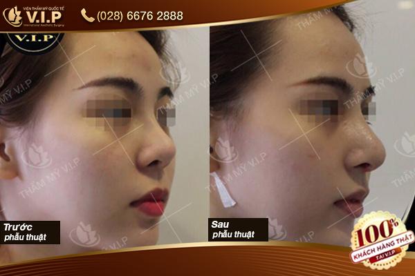 Hình ảnh khách hàng chỉnh sửa mũi hỏng