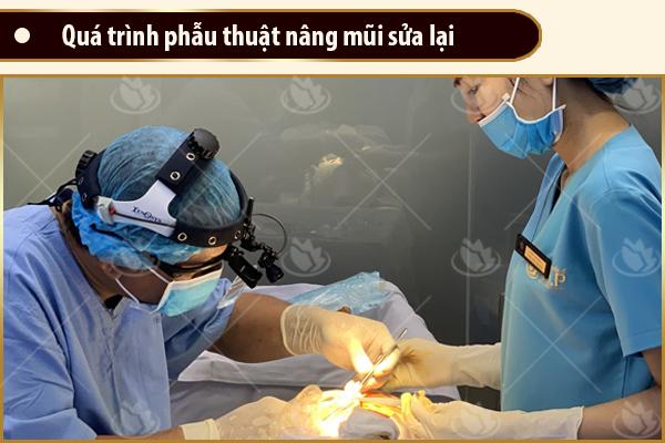 phẫu thuật nâng mũi cấu trúc bị hỏng, sửa mũi hỏng tại vip