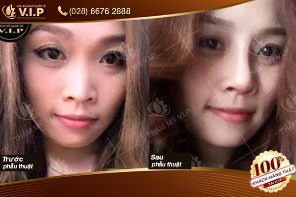 Hình ảnh khách hàng nâng mũi bọc đầu mũi tại VIP