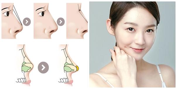 Quy trình nâng mũi bọc sụn tự thân