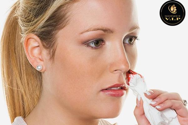 Mũi ra máu/ dịch sau phẫu thuật có làm sao không?