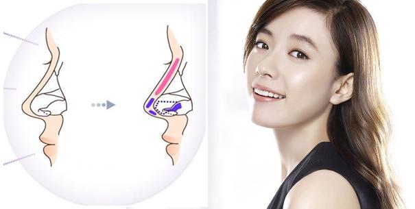 Nâng mũi bọc sụn Hàn Quốc là gì?