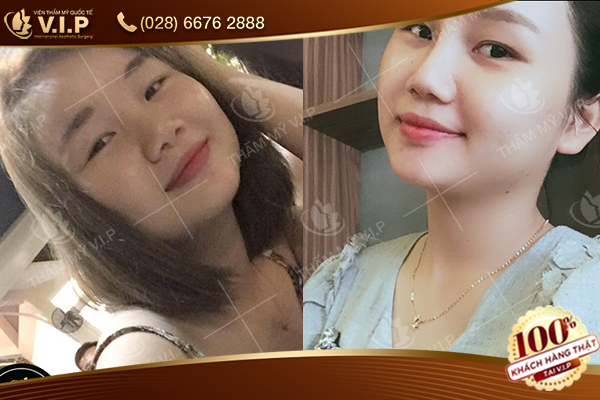 Hình ảnh khách hàng nâng mũi Hàn Quốc tại V.I.P