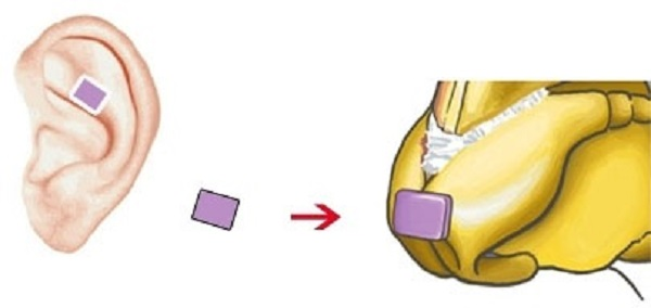 Nâng mũi bọc sụn vành tai là gì
