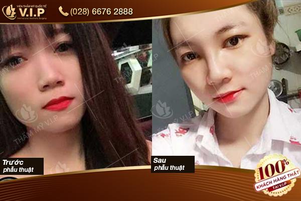 Hình ảnh khách hàng nâng mũi Hàn Quốc VIP
