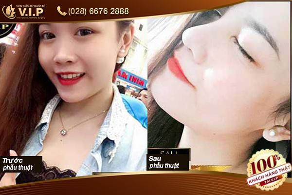 Hình ảnh khách hàng nâng mũi Hàn Quốc tại VIP