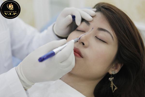 bác sĩ đo dáng mũi trước khi nâng mũi thái lan