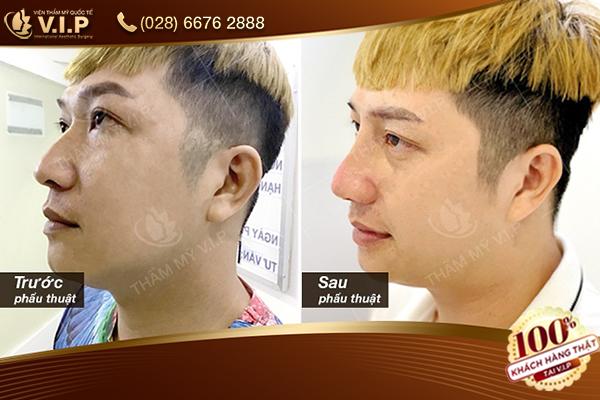 Hình ảnh khách hàng chỉnh hình mũi gồ