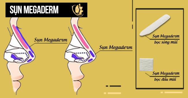 các loại sụn megaderm