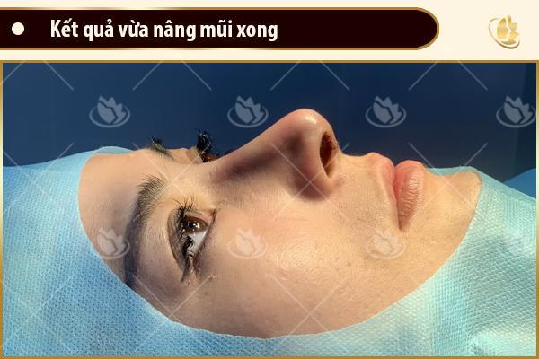 hình ảnh sau khi nâng mũi megaderm
