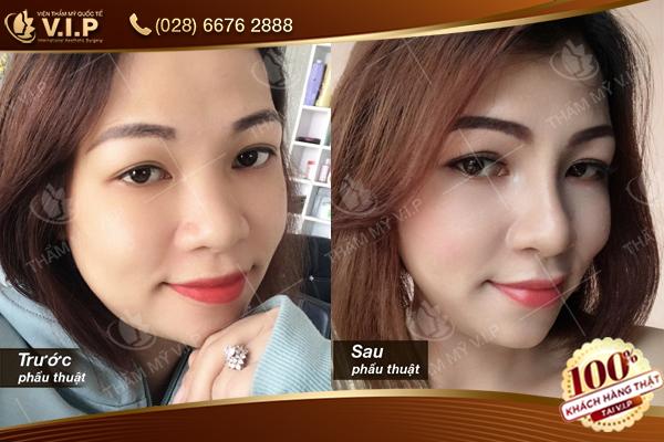 khách hàng trước và sau khi nâng mũi