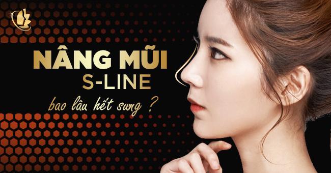http://thammyvip.com/upload/images/phau-thuat-tham-my/tham-my-mui/nang-mui-nose/nang-mui-s-line-bao-lau-het-sung.jpg