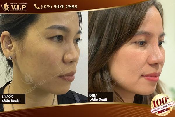 khách hàng nâng mũi surgiform