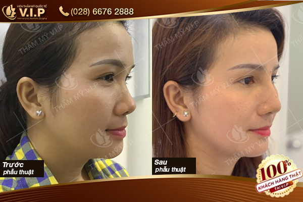 Hình ảnh khách hàng nâng mũi vip tiêu chuẩn 3a
