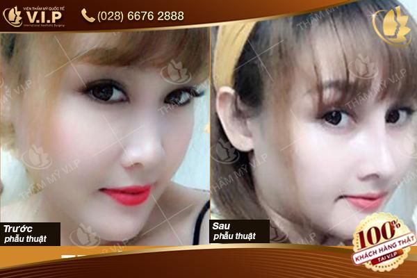 Hình ảnh thực tế khách hàng nâng mũi S Line tại VIP