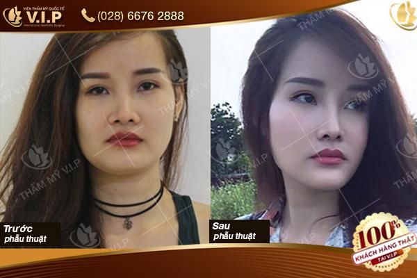 Hình ảnh khách hàng thu gọn cánh mũi tại V.I.P