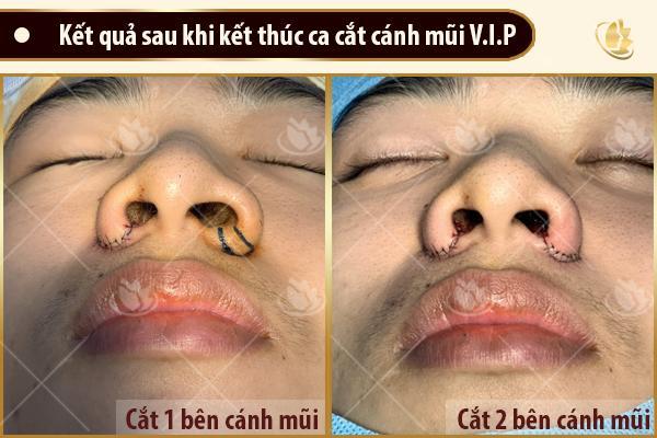 kết quả sau khi cắt cánh mũi vip