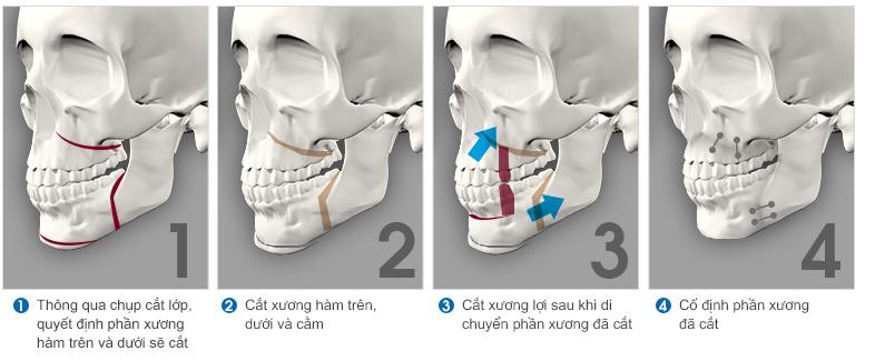 phẫu thuật chỉnh hình hàm hô