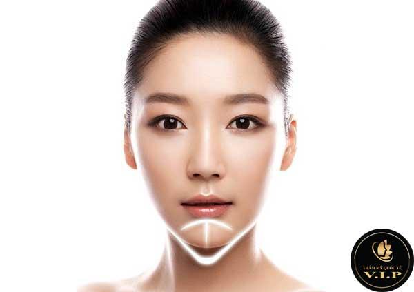 Độn cằm V Line đẹp chuẩn sao Hàn tại V.I.P