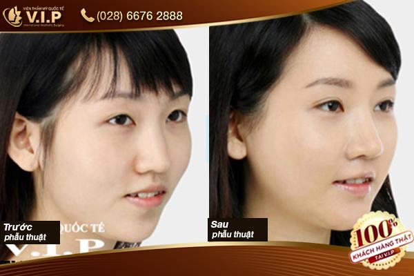 Hình ảnh khách hàng độn cằm V Line Hàn Quốc tại VIP