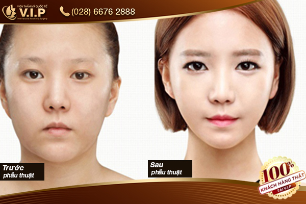phẫu thuật mặt đẹp an toàn