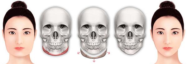 quy trình phẫu thuật mặt đẹp an toàn