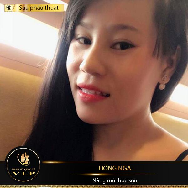 câu chuyện khách hàng Hồng Nga