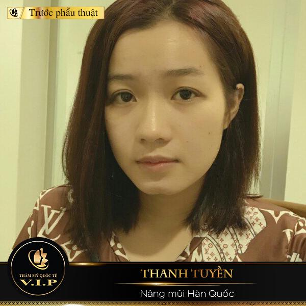 câu chuyện khách hàng Thanh Tuyền