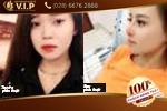 Chia sẻ của khách hàng Trần Phương khi đi nâng mũi S line tại V.I.P