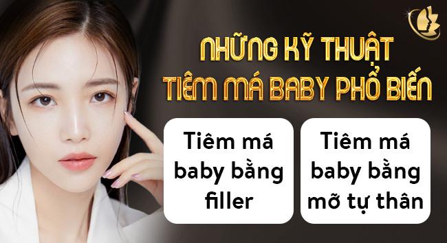kỹ thuật tiêm má baby vĩnh viễn