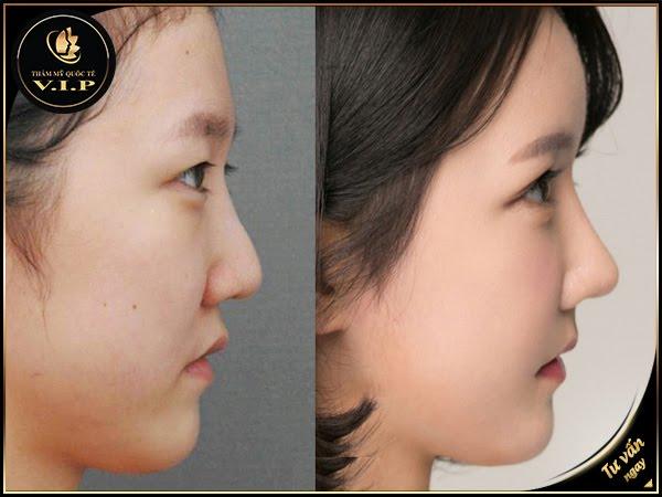 Nâng mũi không phẫu thuật tại V.I.P
