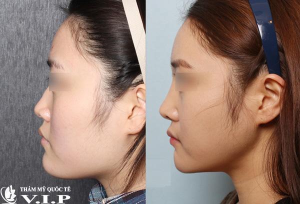 Khách hàng thực tế nâng mũi không phẫu thuật VIP