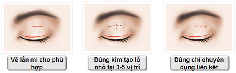 Bấm mí mắt là gì