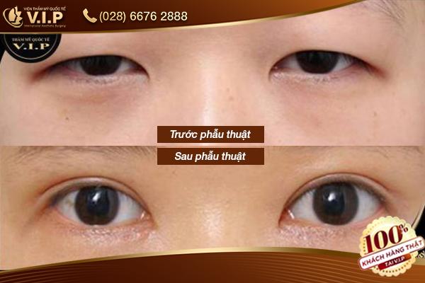 nhấn mí hàn quốc giúp đôi mắt đẹp hơn tại V.I.P