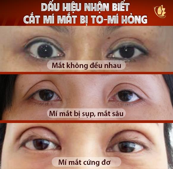 Dâus hiệu cắt mí mắt bị to