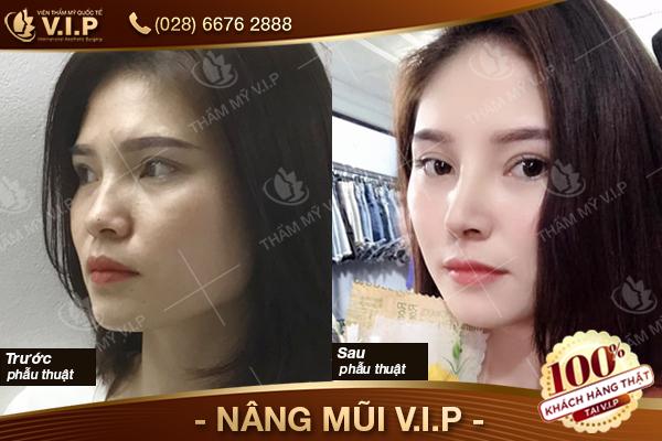 khách hàng trả lời nâng mũi ở đâu rẻ và đẹp và chọn VIP