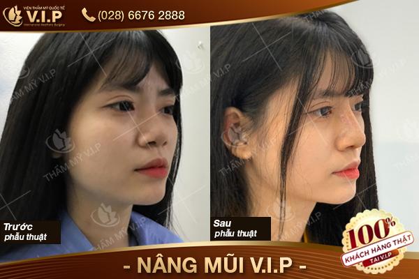 khách hang nâng mũi tại vip chọn nâng mũi ở đâu đẹp và rẻ