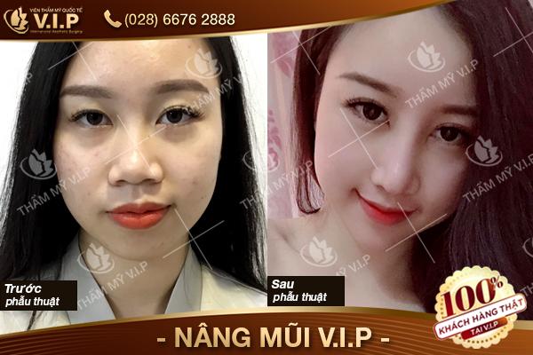 Địa chỉ nâng mũi đẹp uy tín và chất lượng ở Sài Gòn