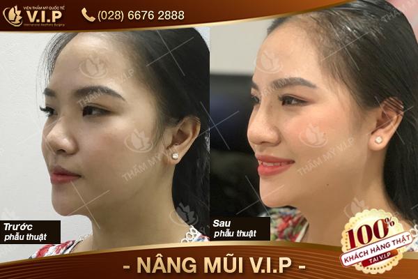 Khách hàng đã nâng mũi bọc sụn vành tai tại V.I.P