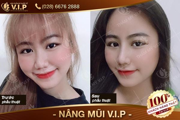 Hình ảnh khách hàng nâng mũi bọc sụn tại V.I.P